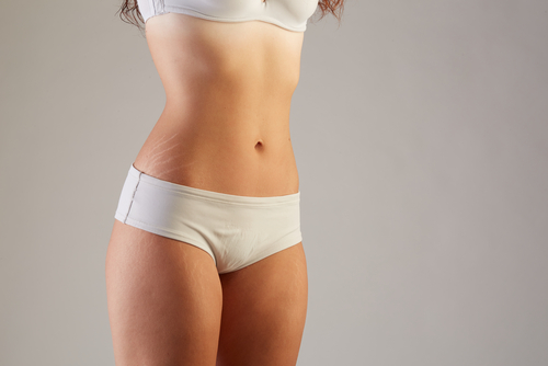 women with stretch marks  everything you need to know about stretch marks