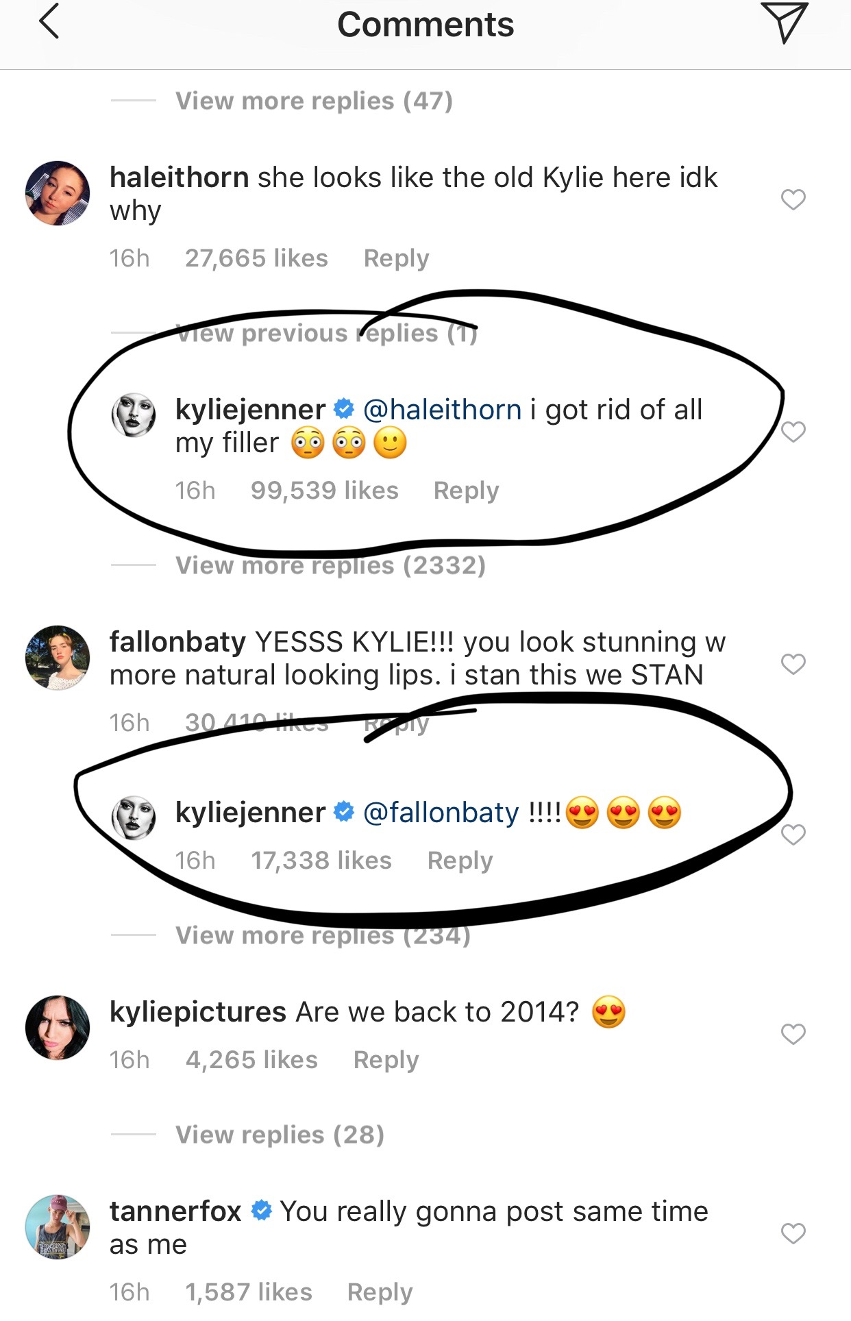 kylie jenner lip filler comment screenshot