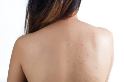 home-remedies-for-back-acne-internal