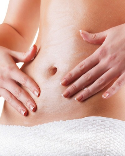 Everything You Need To Know About Stretch Marks