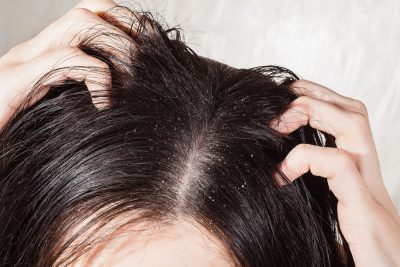 How to get rid of dandruff scalp