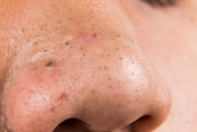 what-are-blackheads
