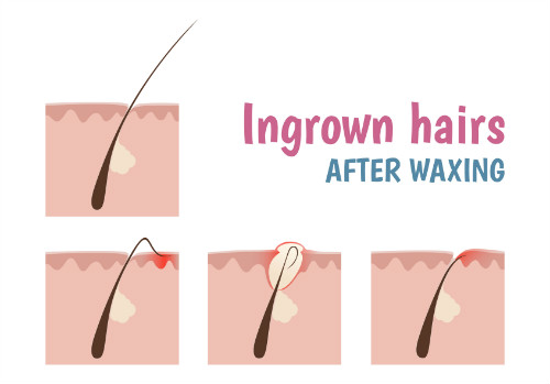 5 smooth and hairless underarms