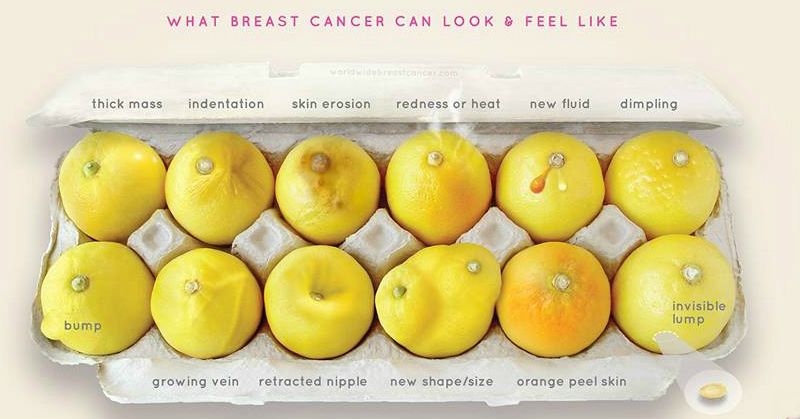 What Breast Cancer Can Look & Feel Like - You NEED To Know This!