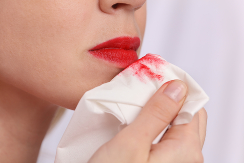 4 common lipstick problems - stained lips