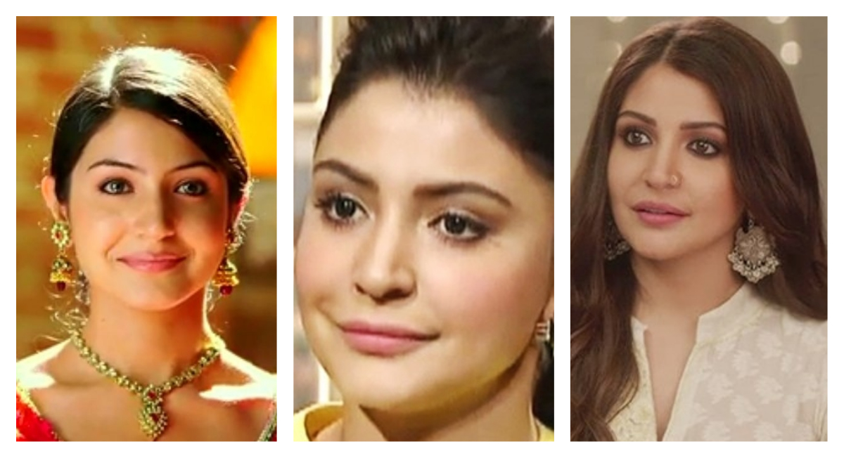 anushka sharma lip job collage