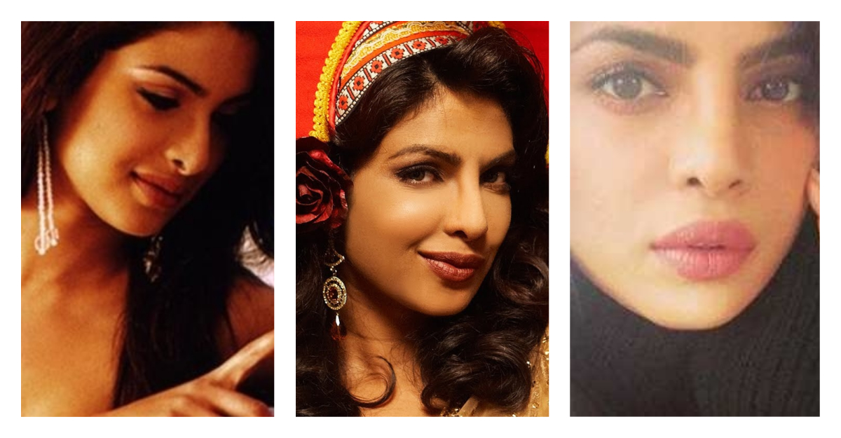 priyanka chopra plastic surgery collage