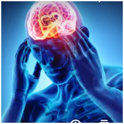 Home remedies for migraine pain
