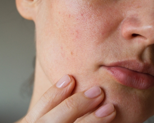 How To Know Your Skin Type In Telugu