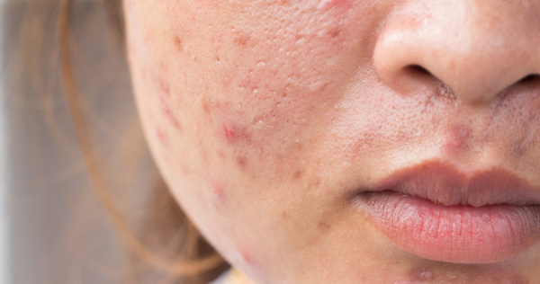 how to treat scars from acne