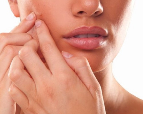 how to treat scars from acne pimples 1
