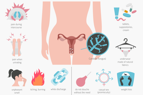 what-is-vaginal-discharge-types-causes-and-treatments %283%29