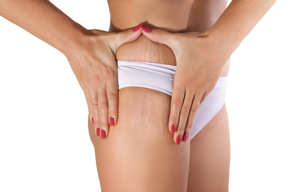 Home Remedies To Remove Stretch Marks In Telugu9