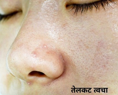oily skin care tips marathi