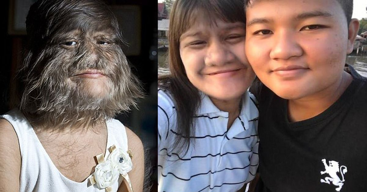 Meet The World's Hairiest Girl & Let Her Show You Love Has Nothing To Do With Looks