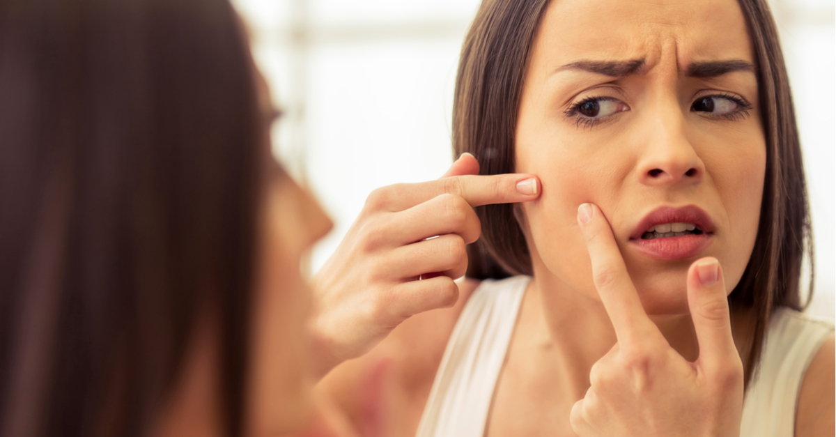 These Magical Home Remedies Are Great Fixes For Pesky Pimples