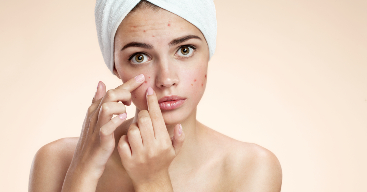 What If We Told You The Most Effective Pimple Remedy Costs NOTHING