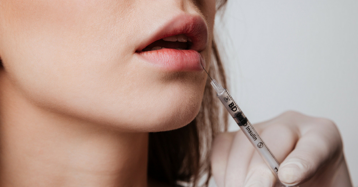Think Your Lips Need A Boost? Here Are A Few Things To Keep In Mind Before Getting Lip Fillers