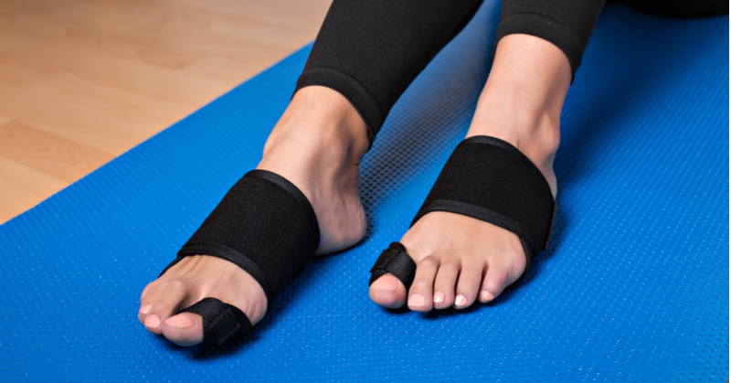 Everything You Need To Know About A Bunion, Its Symptoms And Bunion Correctors