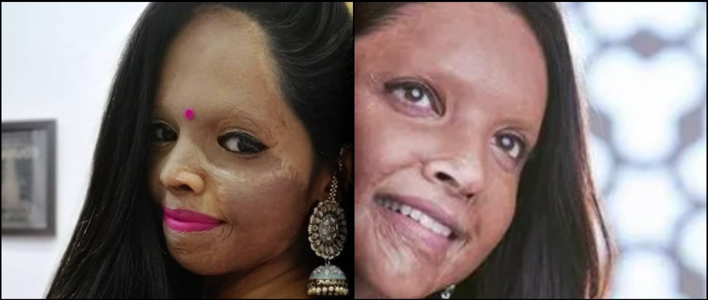 Acid Attack Survivor Laxmi Agarwal Denies Being Paid Rs 13 Lakh For Her Biopic Chhapaak