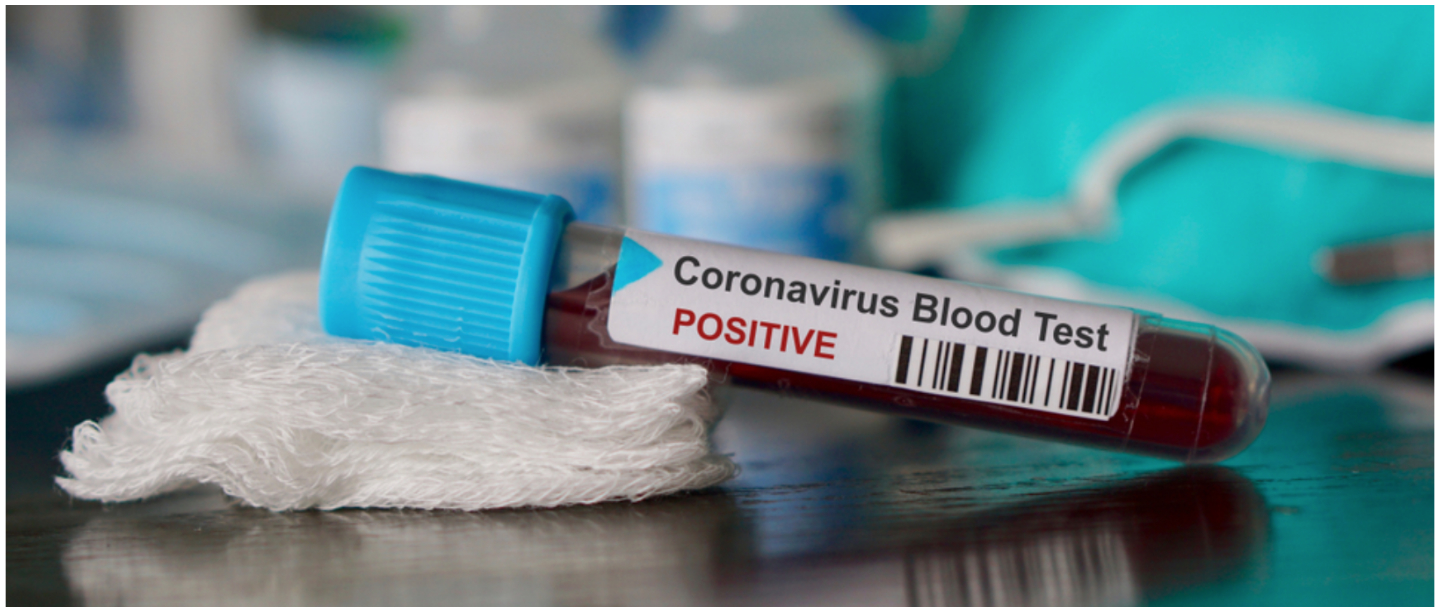 Can Hot Weather Kill Coronavirus? & Other COVID-19 Myths You Should Not Fall For