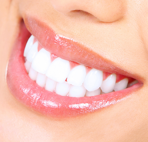 Get Perfect Pearly Whites