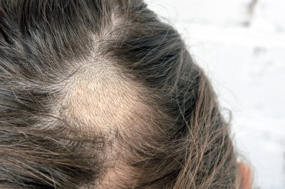 Why Every Girl Needs Ghee for some Intense Hair Care- bald spots