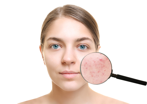 5 body issues acne scars