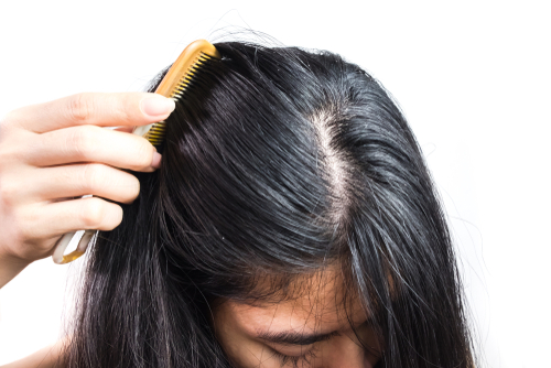 6. oily scalp remedies - girl combing her greasy hair