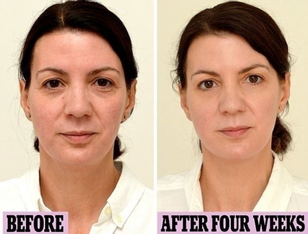 Drinking water makes your skin clear