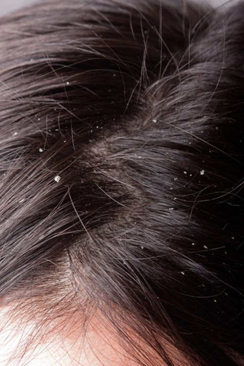 how to deal with dandruff 2