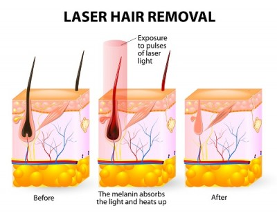 hair removal 3