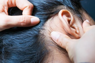 Why Every Girl Needs Ghee for some Intense Hair Care- scalp infection