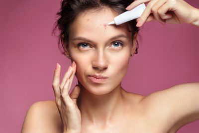 Pimple Removal Cream, how to get rid of pimples, How to get rid of pimples Or How to prevent pimples