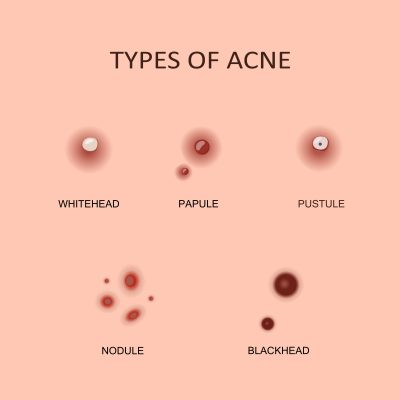 Types of pimples Pimple Removal Cream, how to get rid of pimples, what are the types of acne pimples