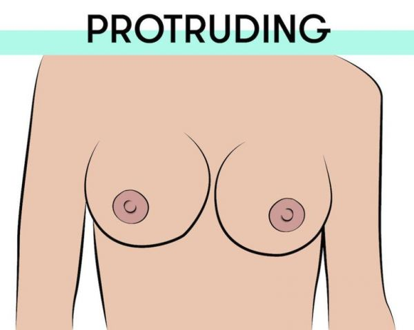 1-protruding-nipples-types-of-breasts