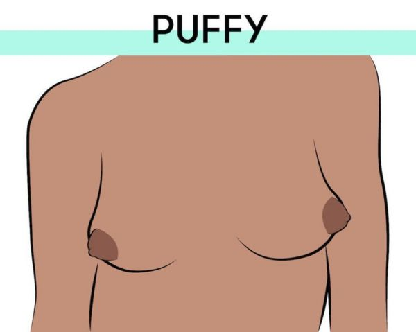3-puffy-nipples-types-of-breasts