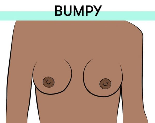 6-bumpy-nipples-types-of-breasts