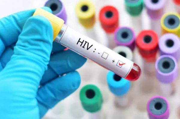 Signs And Symptoms Of HIV hiv5