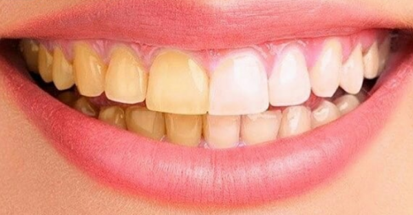 2-WHITEN-TEETH