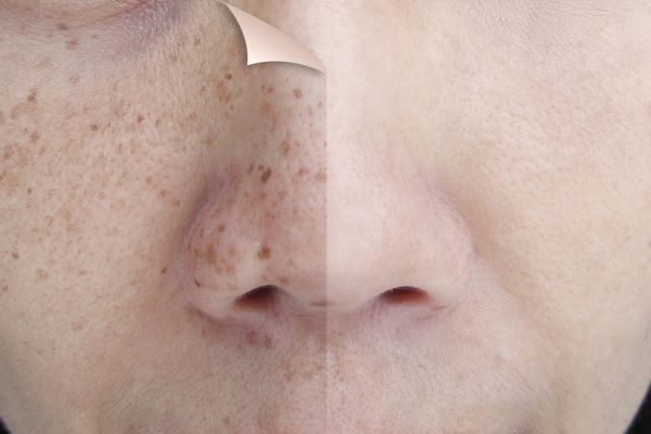 how to treat scars from acneskin