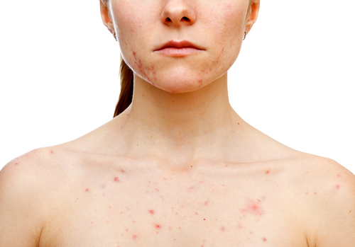 1 chest acne - causes