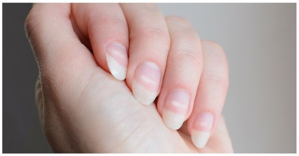 Here's What Is Really Causing Those White Spots On Your Nails