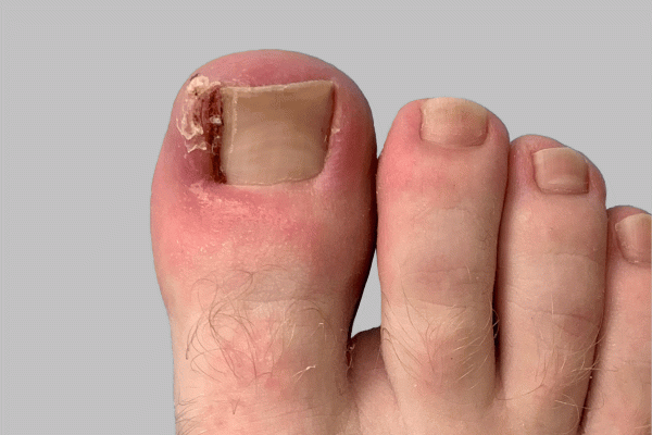 Treatment For Ingrown Toenails