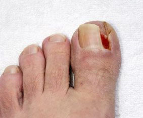 Ingrown Toenail - Home Remedies To Cure