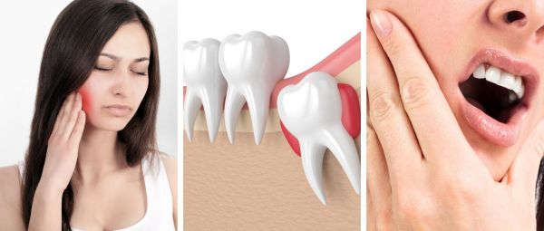 Home Remedies For Wisdom Tooth Pain In Marathi