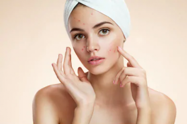 Types of Pimples in Hindi