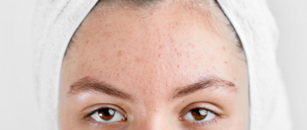 Breaking (Out) Bad: Why Those Pesky Pimples Are Having A Gala Time On Your Forehead