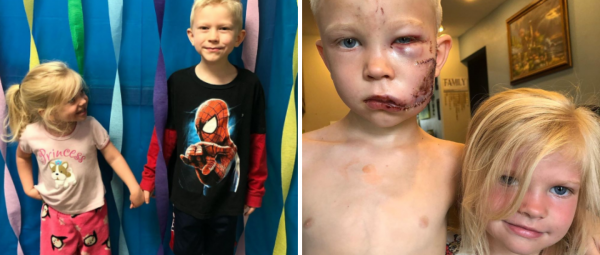 'Avengers' Praise 6-Year-Old Hero After He Bravely Saves Sister From A Brutal Dog Attack