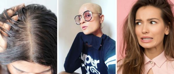 Home Remedies For Female Baldness In Marathi